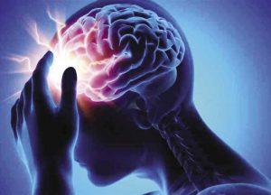 دكتور مخ واعصاب